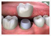 Diagram of crown 				being fitted by dentist