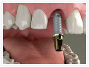 Dental 				implant step 1