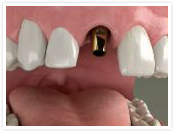 Dental implant step 				2
